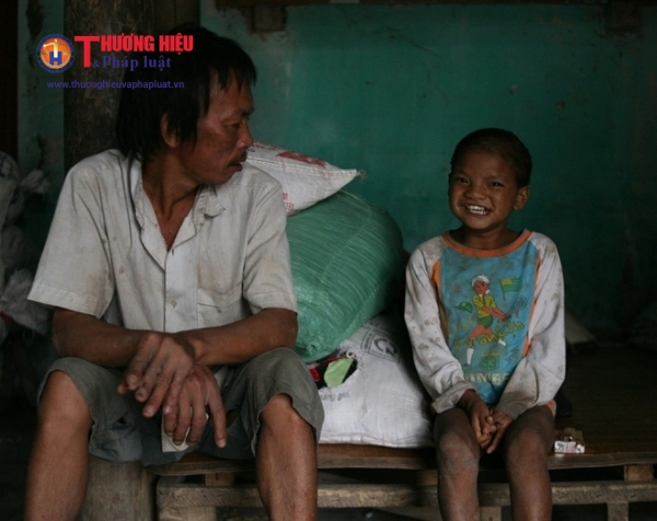 Hai bố con nhà anh Thêm đều đang mắc chứng thần kinh không ổn định và câm điếc bẩm sinh.