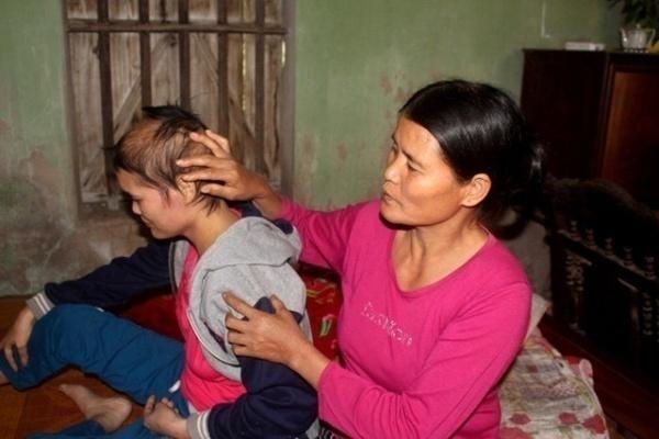 Bà Tuyết đớn đau nhìn con gái đang giành giật sự sống từ căn bệnh tử thần.