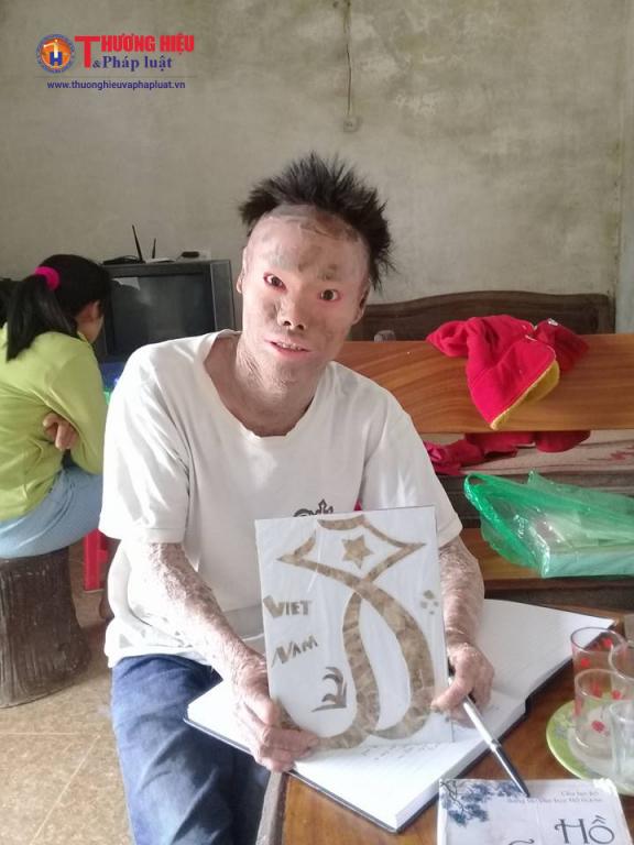 Ngô Văn Thọ đang giới thiệu bức tranh được làm từ từng mảng da bong tróc, nứt nẻ của mình.
