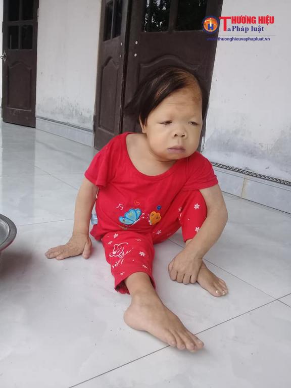 Mặc dù đã 28 tuổi nhưng Trần Thị Thanh chỉ mang thân hình của đứa trẻ lên 3.