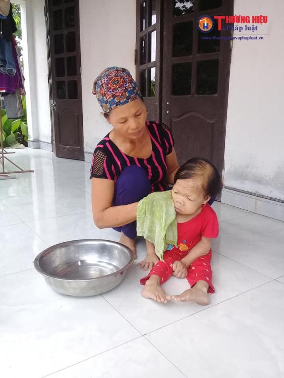 Mặc dù năm nay đã 28 tuổi nhưng Trần Thị Thanh vẫn mang thân hình của đứa trẻ, cơ thể yếu ớt và mọi vệ sinh cá nhân đều phải có người giúp đỡ.