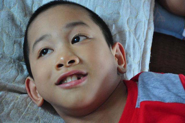 Bé Long (9 tuổi) bị bại não thể co cứng từ khi sinh ra.