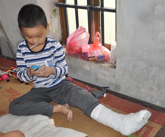 Con trai thứ 2 của chị là bé Tiến mới bị ô tô đâm gãy chân.