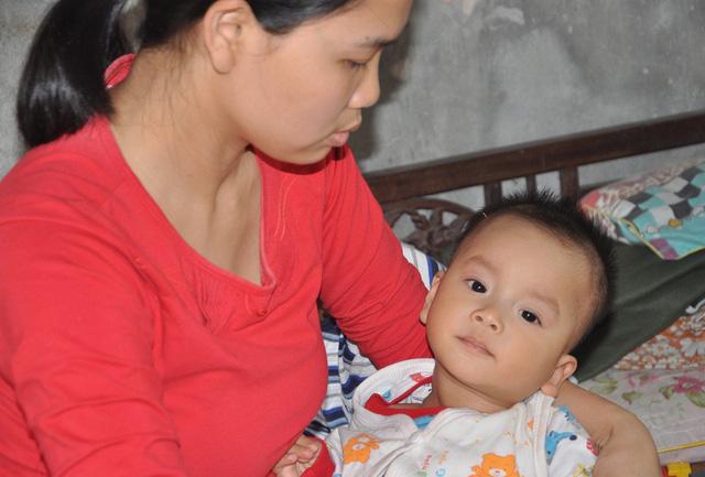 Bé Nhật (1 tuổi) cũng mang bệnh bại não giống anh trai.