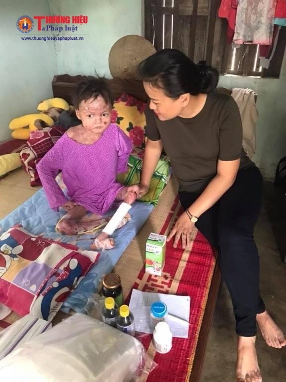 Chị Lan bên cạnh cháu bé mắc bệnh Ly thượng bì bóng nước.