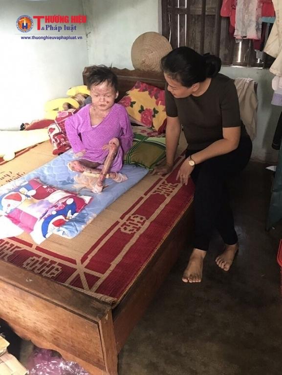 Chị Lan đến thăm một em bé mắc căn bệnh Ly thượng bì bóng nước ( EB ) tại Gia Lai.