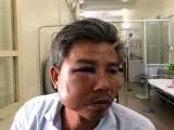 TP.Huế: Khởi tố kẻ côn đồ đánh nhân viên cây xanh nhập viện