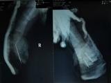 Bình Dương: Bé 2 tuổi bị xích xe máy cắt đứt lìa bàn tay