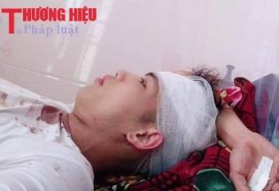 Nghệ An: Dân tố bị Công an xã dùng công cụ hổ trợ đánh nhập viện