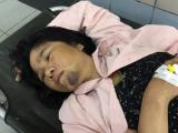 Hà Nội: Người bán tăm bị đánh oan được chuyển lên BV Bạch Mai