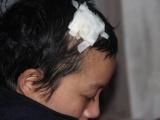 Thương bé lớp 5 một tay chăm mẹ ung thư, bố viêm tủy cấp