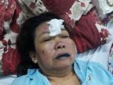 Bệnh viện Sài Gòn ITO điều trị bệnh Gout khiến bệnh nhân có nguy cơ mù lòa