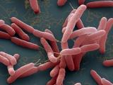 Bộ Y tế khuyến cáo các biện pháp phòng bệnh Whitmore